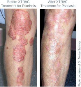 Before and after XTRAC for Psoriasis