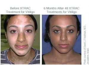 before and after XTRAC treatment for Vitiligo