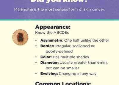 Melanoma ABCDEs