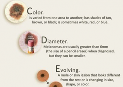 Melanoma warning signs