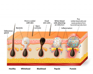 blackhead, whitehead, and acne formation