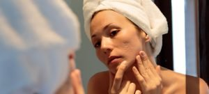 woman checking her face for acne in a mirror