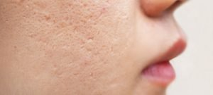 acne scars on a woman's cheek