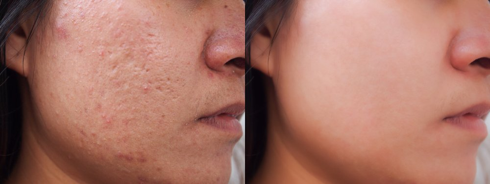 before and after treatment of acne scars