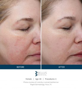 Microneedling before and after results