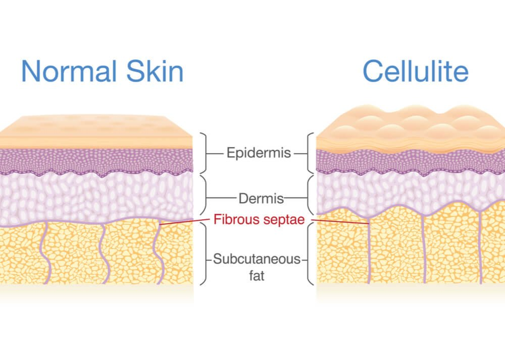6 Misconceptions About Cellulite