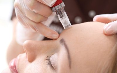 12 Common Questions About Microneedling