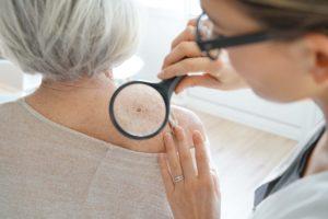 dermatologist exam