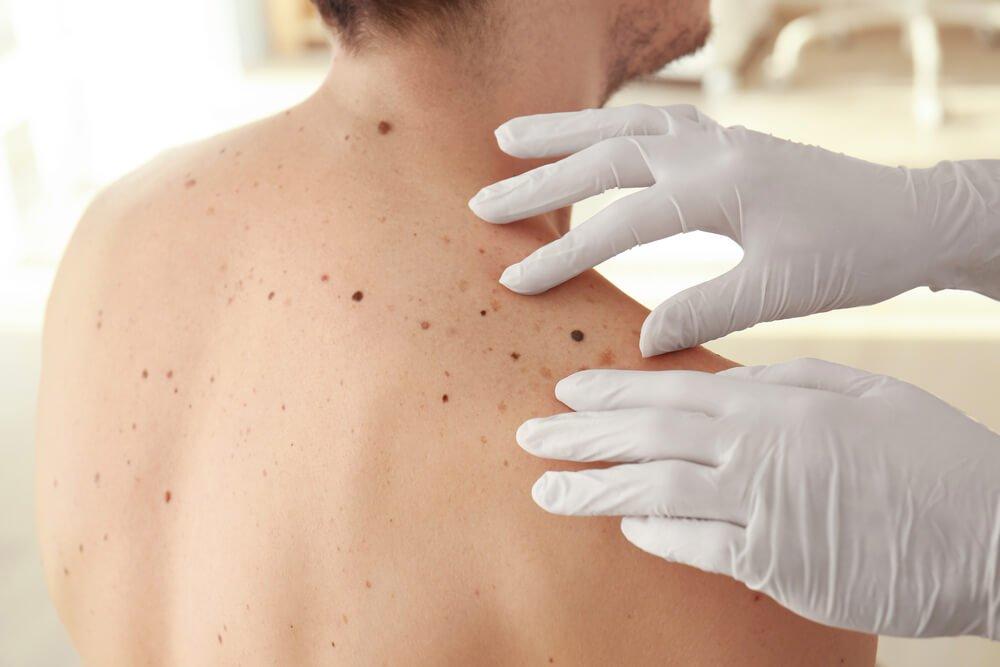 Do I Really Need a Skin Cancer Check-Up?