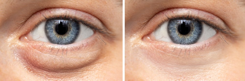 a comparison of a healthy eye and an eye with bags underneath it