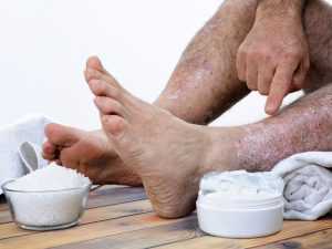 treating psoriasis with traditional salts and creams