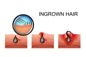 treatments for ingrown hair dermatologists in greeley