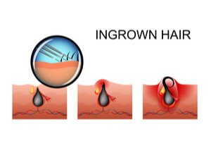 Causes and Treatment of Ingrown Hairs