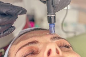dermatologist performing microneedling treatment