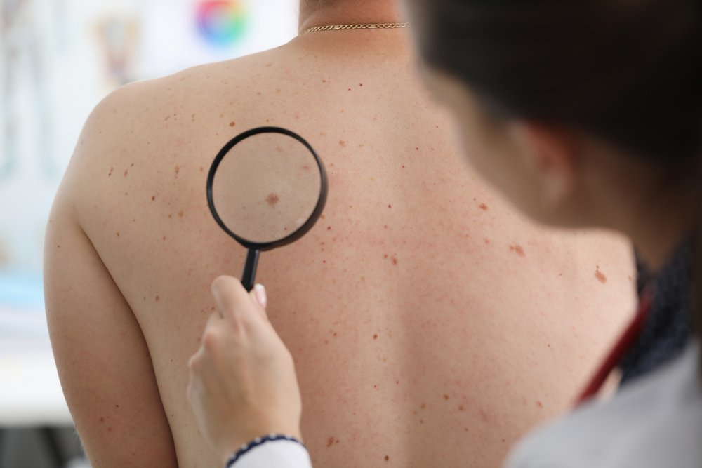 dermoatologist using a magnifying glass on a patient to check moles