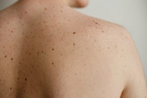 multiple moles on the back of a man