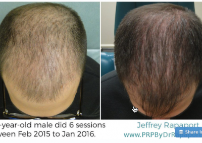 hair restoration for males