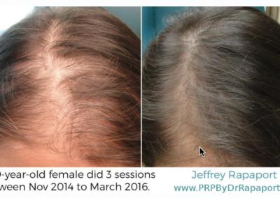 prp hair restoration for females