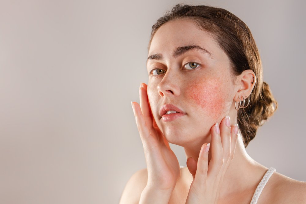 woman with red cheeks from rosacea