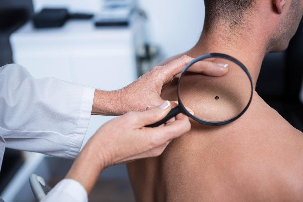 man having a potentially cancerous mole on his back looked at with a magnifying glass