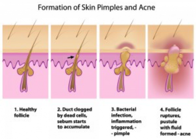 Formation of Skin Pimples and Acne