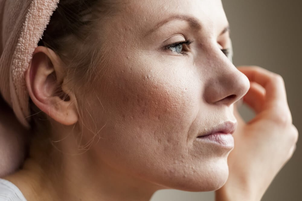 5 Ways to Treat Acne Scars That Actually Work