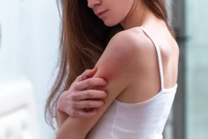 woman itching red patch on her shoulder due to eczema