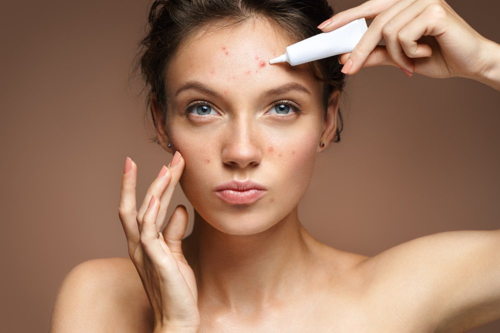 woman applying a treatment to acne on her forehead with many other breakouts on her face