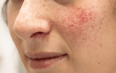 About Rosacea, By Laurel Stearns, DO